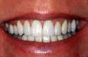 After San Diego California Teeth Whitening